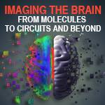 Imaging the Brain: From Molecules to Circuits and Beyond